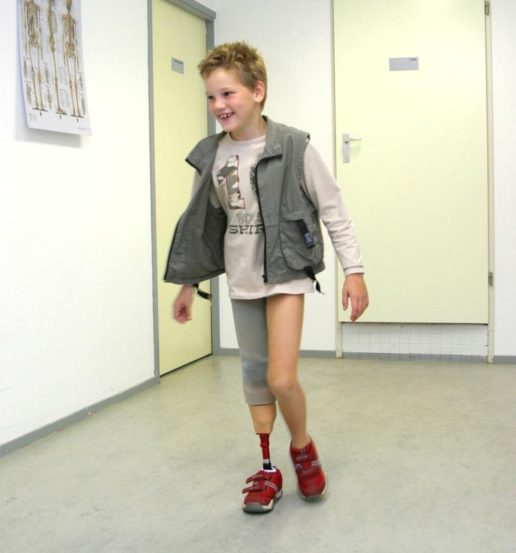 Prothese Orthese bij Kamer Orthopedie Amsterdam en Purmerend