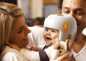 Orthopedische helm Kamer Othopedie