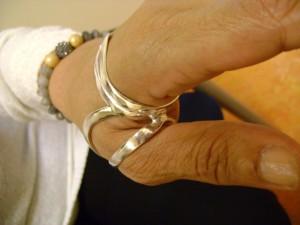 silver ring splint
